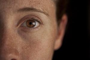 Zima najlepszym okresem by pozbyć się przebarwień skóry [© psnoonan - Fotolia.com]