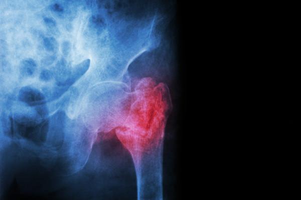 Złamanie biodra zagraża odzyskaniu mobilności w przypadku ludzi starszych [Fot. stockdevil - Fotolia.com]