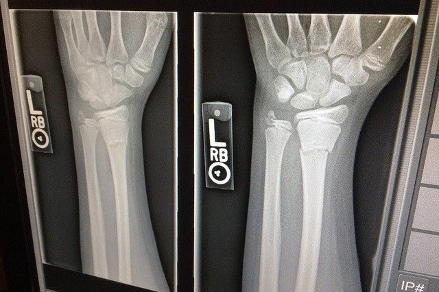 Złamanie w jednym miejscu skutkuje utratą gęstości innych kości [fot. Nicholas Warrilow from Pixabay]