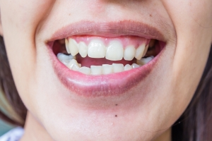 Złamany ząb można naprawić [Fot. navintar - Fotolia.com]