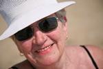 Złote zasady ochrony przed czerniakiem [© aceshot - Fotolia.com]