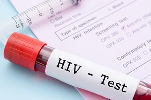 Zrób test na HIV [© gamjai - Fotolia.com]